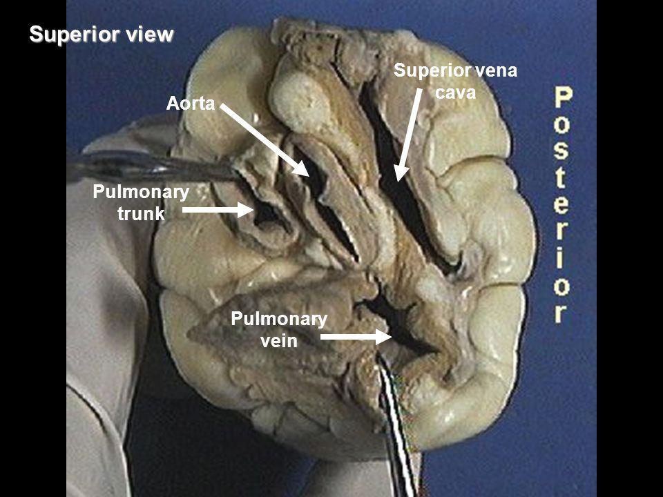 Superior view Pulmonary trunk Aorta Pulmonary vein Superior vena cava