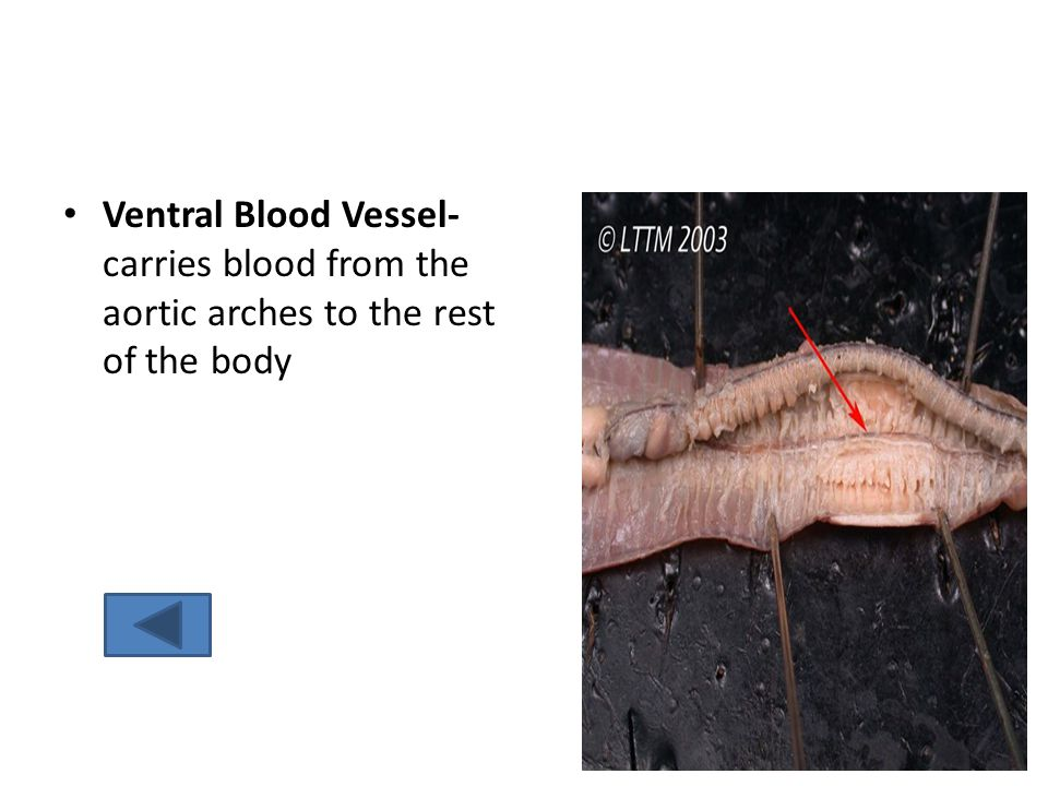 Ventral Blood Vessel- carries blood from the aortic arches to the rest of the body