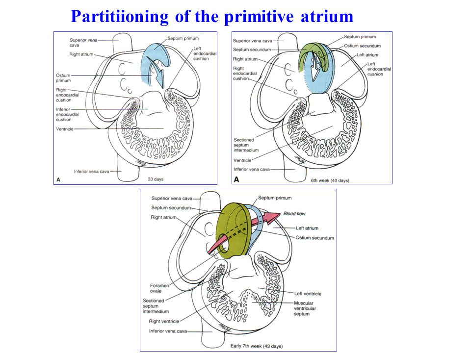 Partitiioning of the primitive atrium