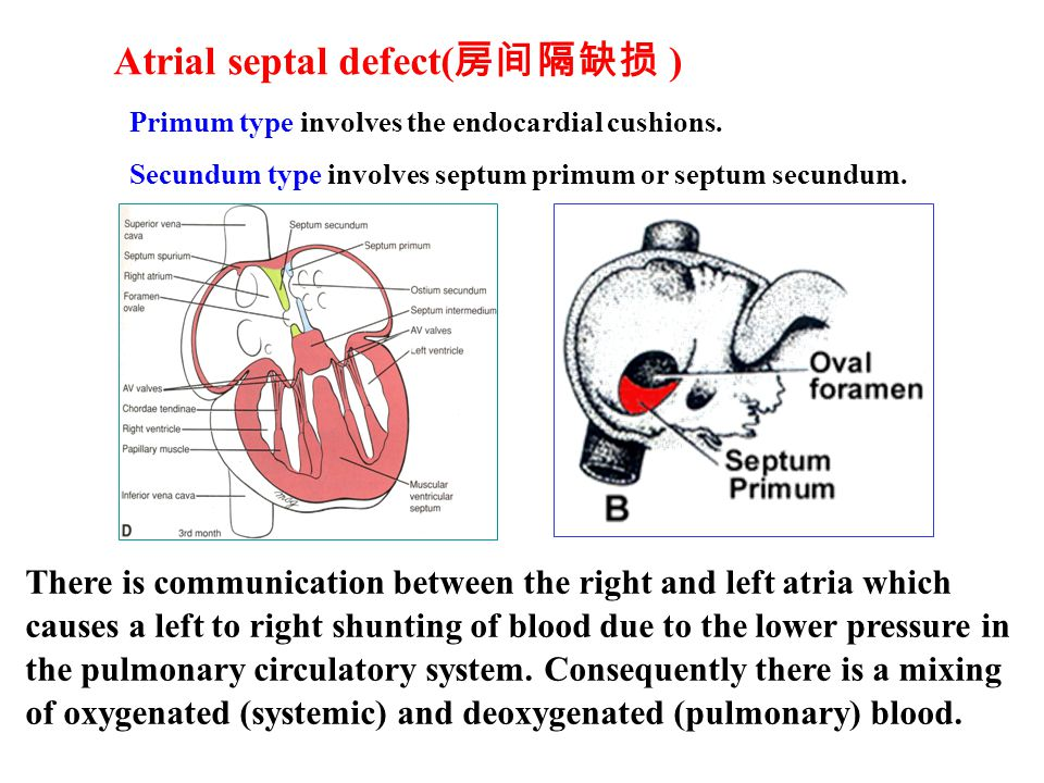 Atrial septal defect( 房间隔缺损 ) Primum type involves the endocardial cushions.
