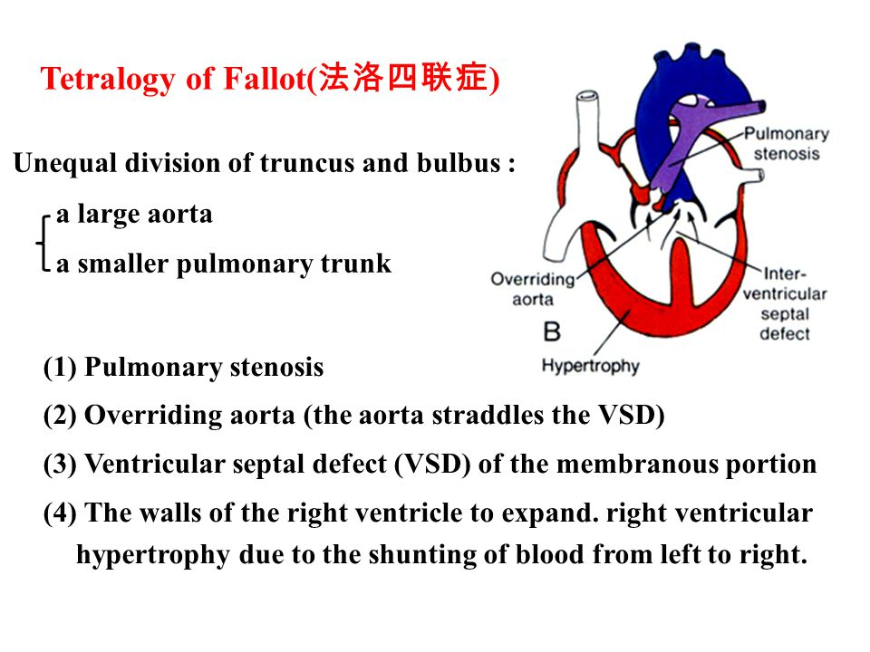 Tetralogy of Fallot( 法洛四联症 ) (1) Pulmonary stenosis (2) Overriding aorta (the aorta straddles the VSD) (3) Ventricular septal defect (VSD) of the membranous portion (4) The walls of the right ventricle to expand.
