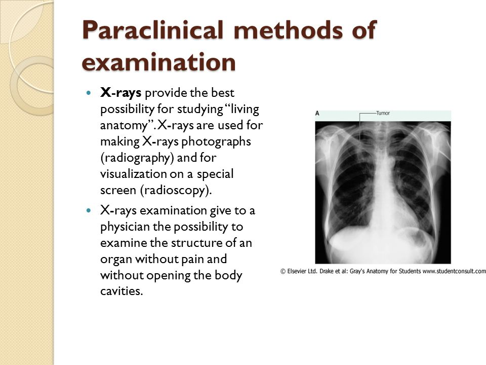 "Paraclinical methods of examination X-rays provide the best possibility for studying ""living anatomy"". X-rays are used for making X-rays photographs ("