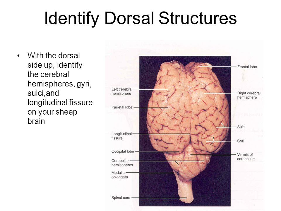 Identify Dorsal Structures With the dorsal side up, identify the cerebral hemispheres, gyri, sulci,and longitudinal fissure on your sheep brain
