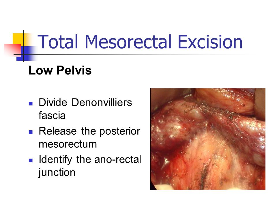 Total Mesorectal Excision Low Pelvis Divide Denonvilliers fascia Release the posterior mesorectum Identify the ano-rectal junction