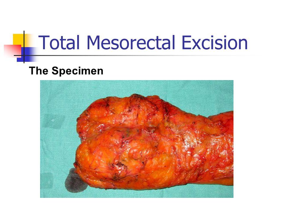 Total Mesorectal Excision The Specimen