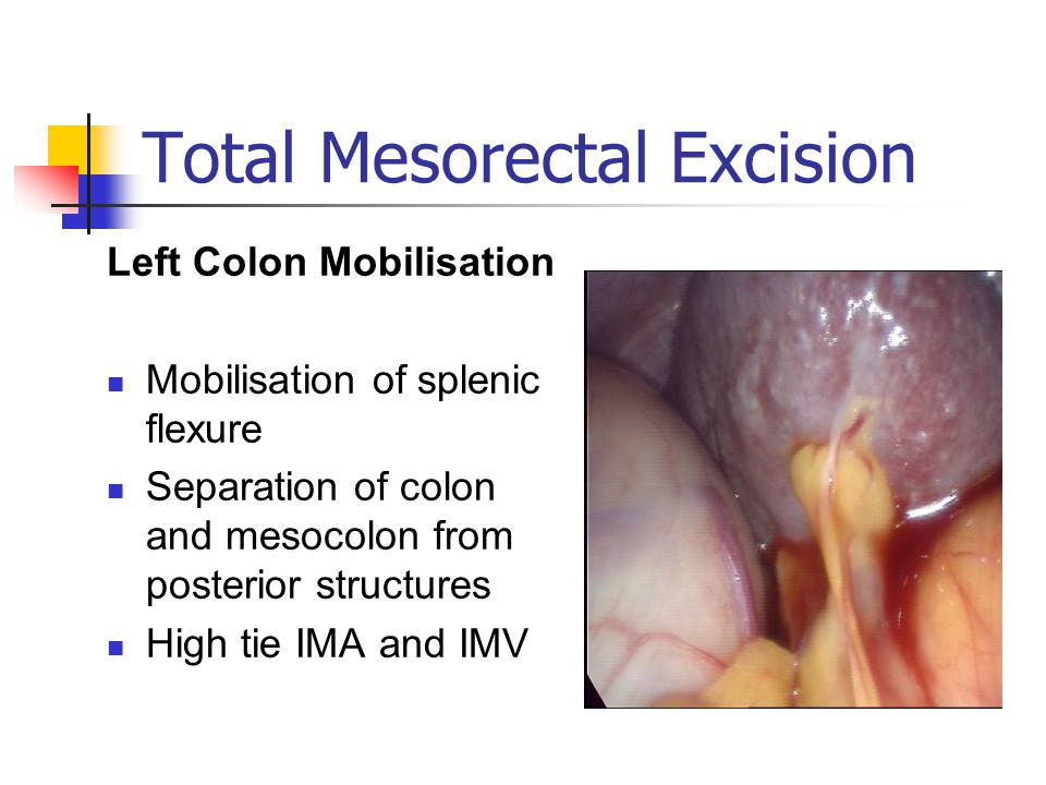 Total Mesorectal Excision Left Colon Mobilisation Mobilisation of splenic flexure Separation of colon and mesocolon from posterior structures High tie