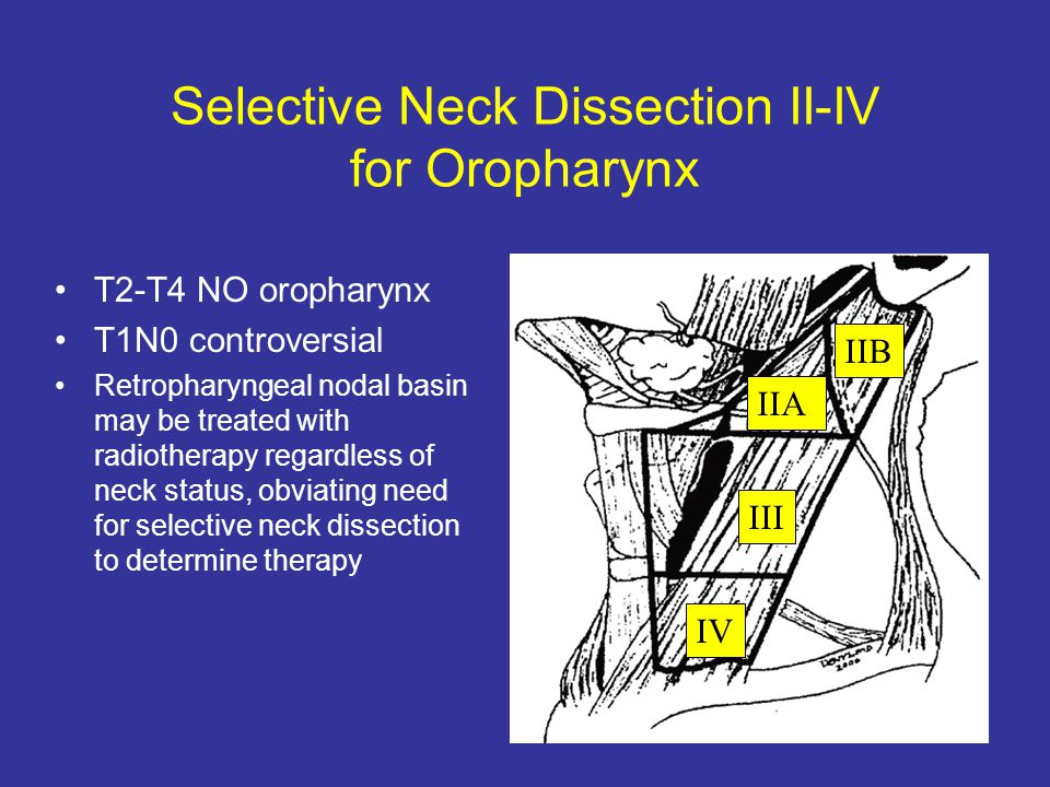 Selective Neck Dissection II-IV for Oropharynx IV III IIA IIB T2-T4 NO oropharynx T1N0 controversial Retropharyngeal nodal basin may be treated with r