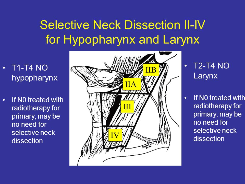 Selective Neck Dissection II-IV for Hypopharynx and Larynx IV III IIA IIB T1-T4 NO hypopharynx If N0 treated with radiotherapy for primary, may be no