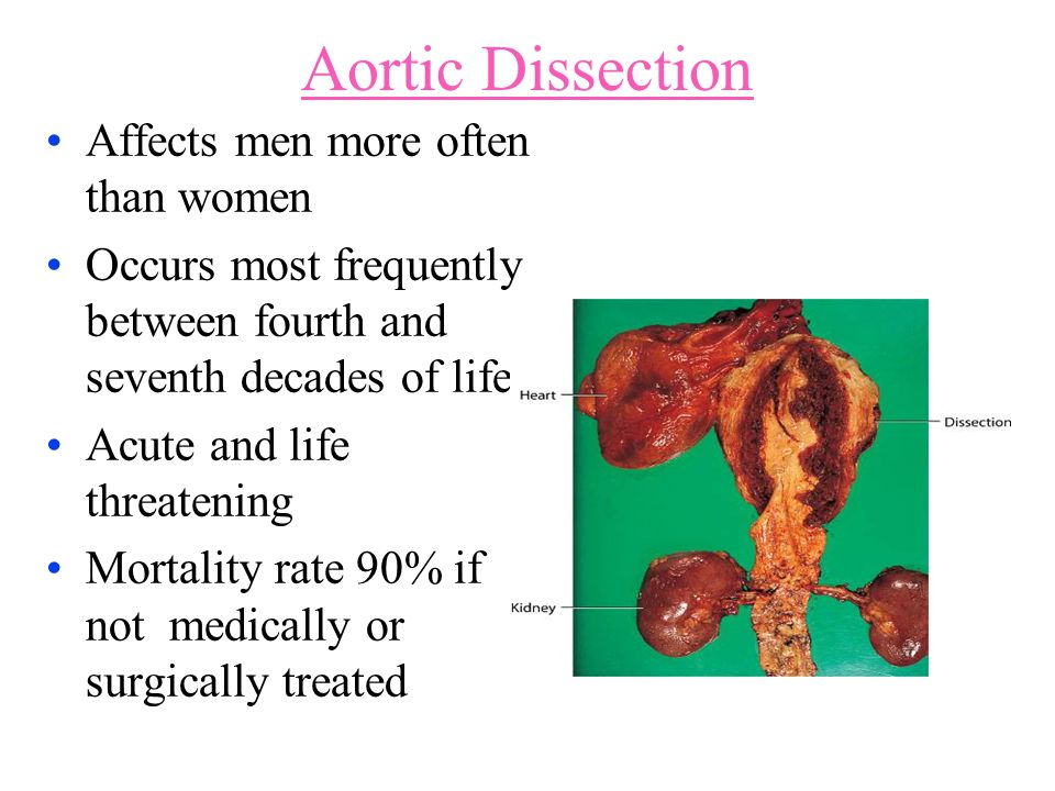 Aortic Dissection Affects men more often than women Occurs most frequently between fourth and seventh decades of life Acute and life threatening Morta
