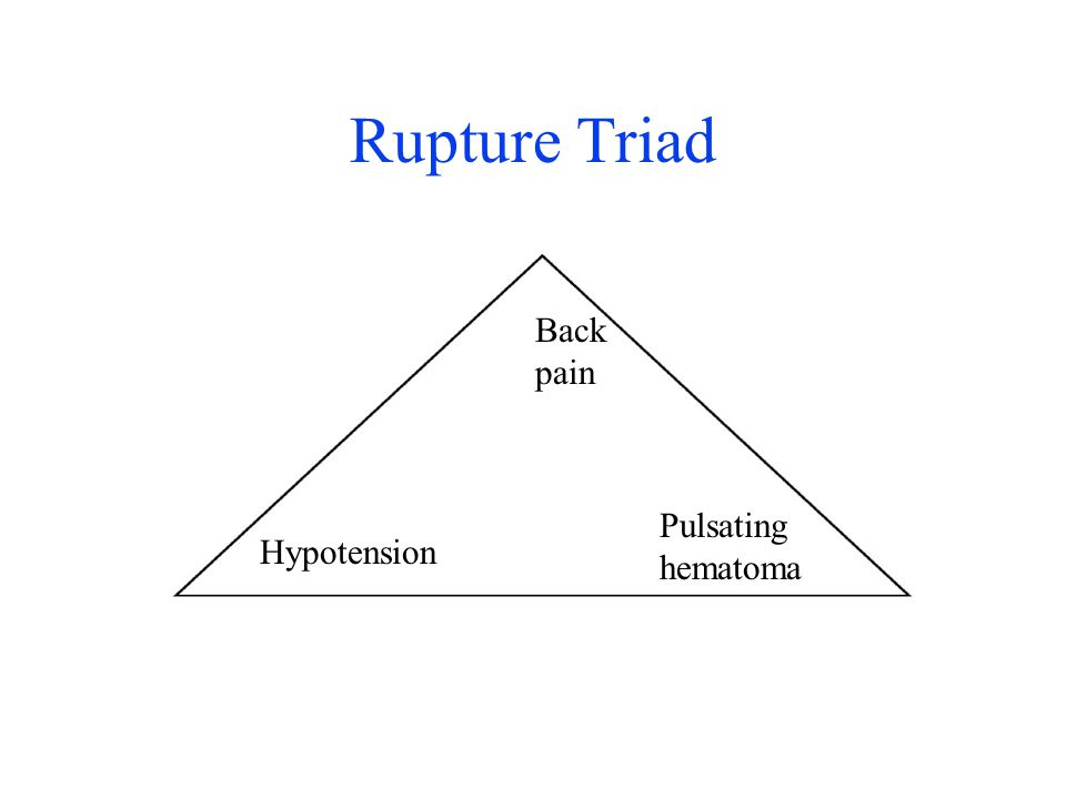 Rupture Triad Back pain Hypotension Pulsating hematoma
