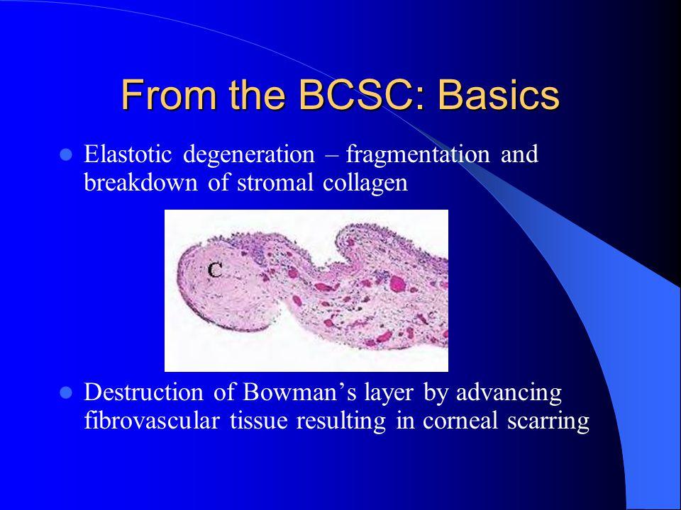 From the BCSC: Basics Elastotic degeneration – fragmentation and breakdown of stromal collagen Destruction of Bowman's layer by advancing fibrovascula