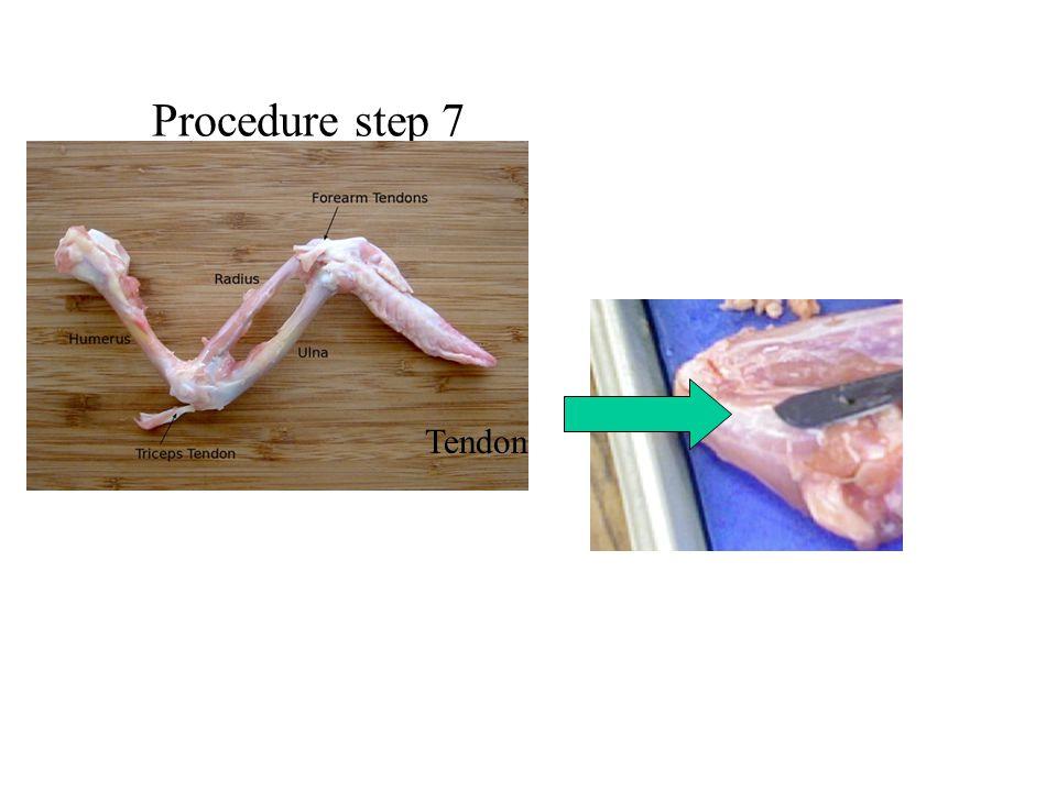 Procedure step 7 Tendon