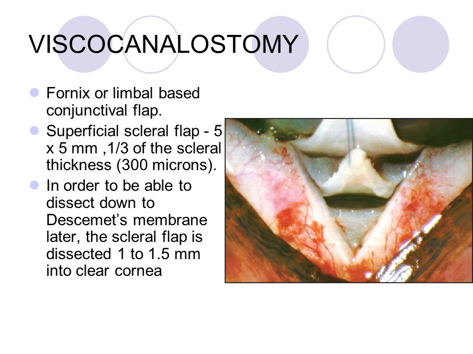VISCOCANALOSTOMY Fornix or limbal based conjunctival flap.