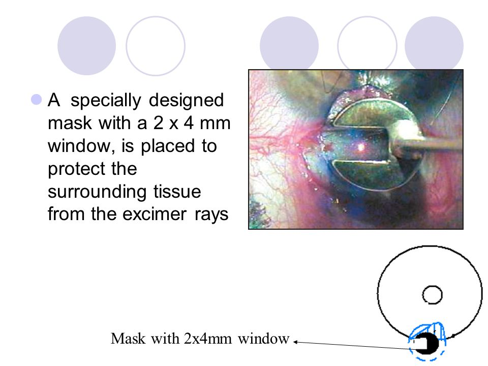 A specially designed mask with a 2 x 4 mm window, is placed to protect the surrounding tissue from the excimer rays Mask with 2x4mm window