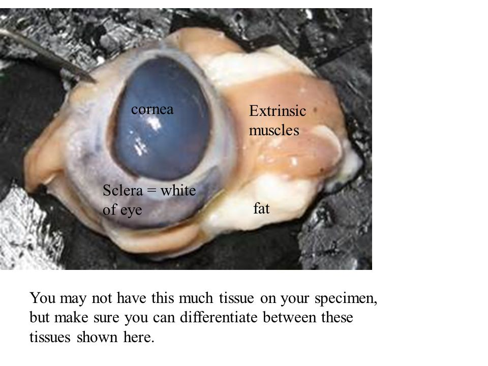 You may not have this much tissue on your specimen, but make sure you can differentiate between these tissues shown here. fat Sclera = white of eye Ex