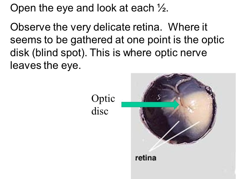 Open the eye and look at each ½. Observe the very delicate retina. Where it seems to be gathered at one point is the optic disk (blind spot). This is
