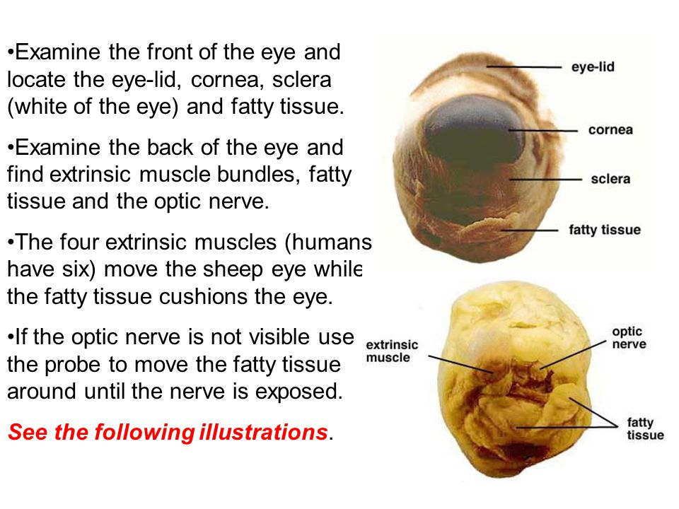 Examine the front of the eye and locate the eye-lid, cornea, sclera (white of the eye) and fatty tissue. Examine the back of the eye and find extrinsi