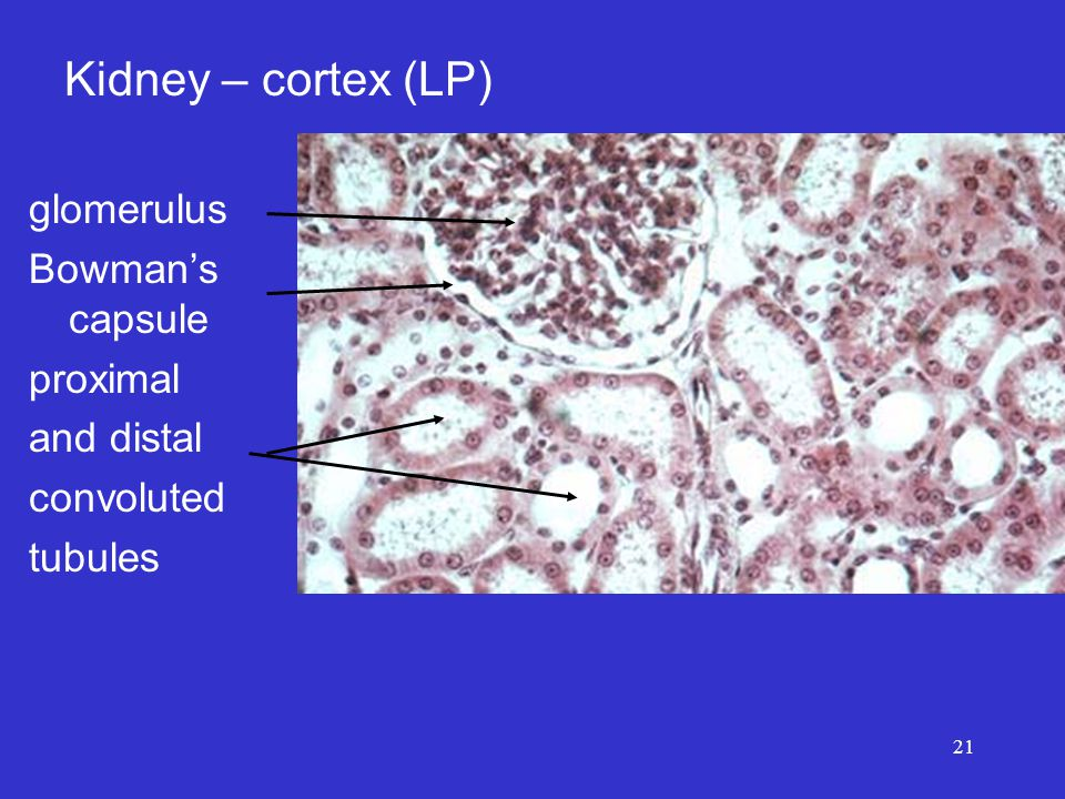 21 glomerulus Bowman's capsule proximal and distal convoluted tubules Kidney – cortex (LP)