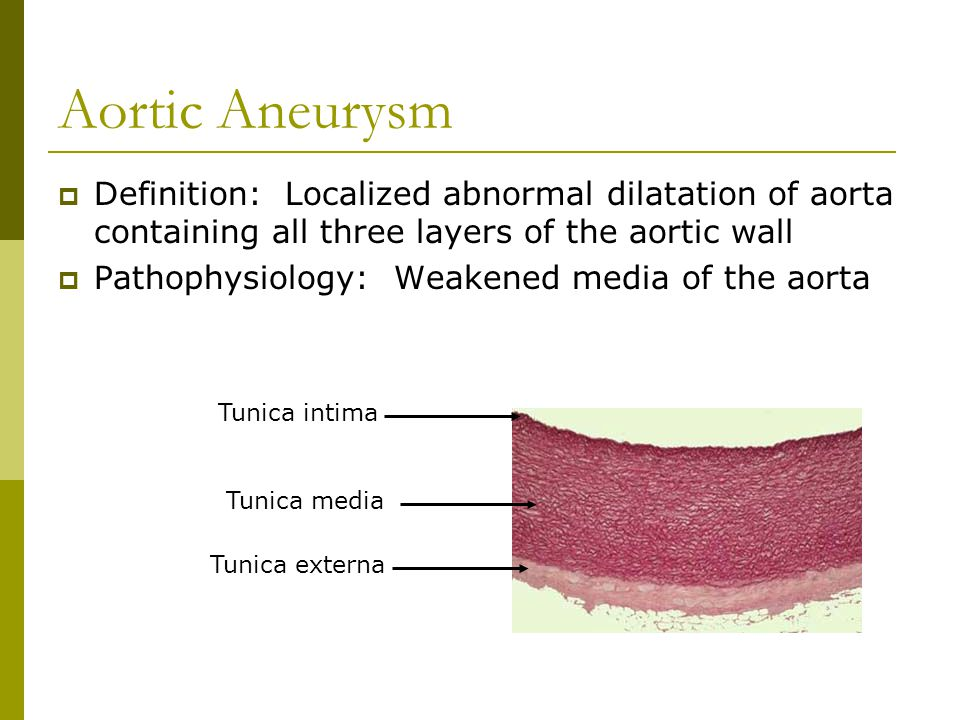 Aortic Aneurysm  Definition: Localized abnormal dilatation of aorta containing all three layers of the aortic wall  Pathophysiology: Weakened media