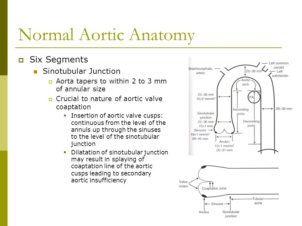 Normal Aortic Anatomy  Six Segments Sinotubular Junction  Aorta tapers to within 2 to 3 mm of annular size  Crucial to nature of aortic valve coapt
