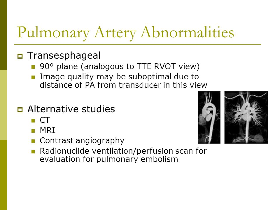 Pulmonary Artery Abnormalities  Transesphageal 90° plane (analogous to TTE RVOT view) Image quality may be suboptimal due to distance of PA from tran