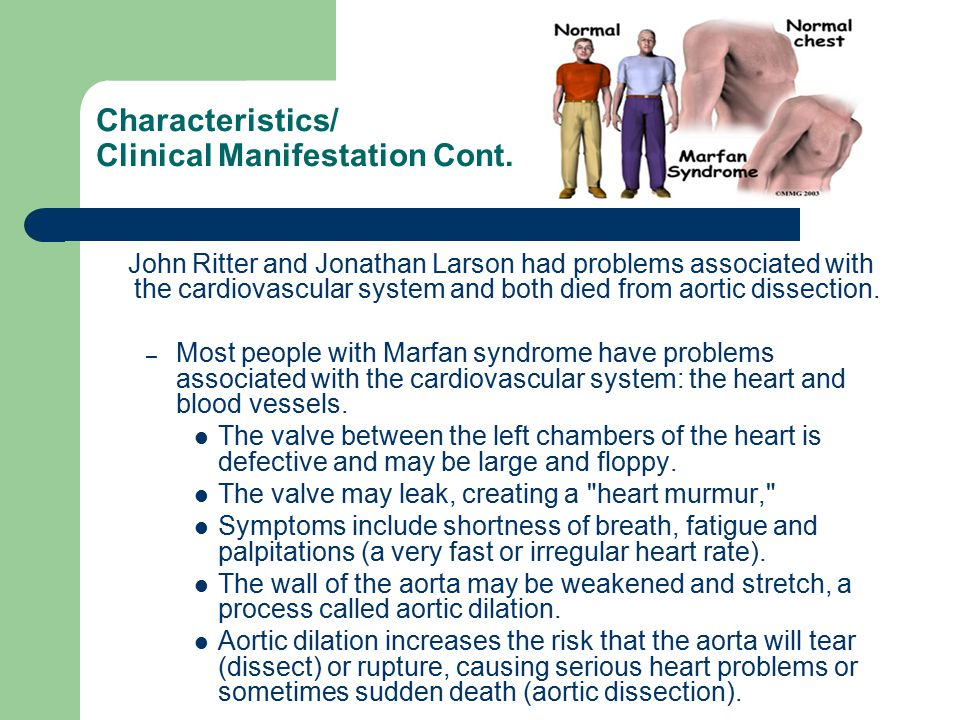 Characteristics/ Clinical Manifestation Cont.