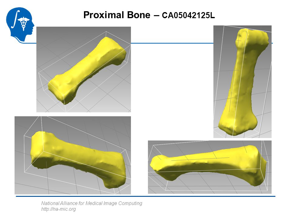 National Alliance for Medical Image Computing http://na-mic.org Proximal Bone – CA05042125L