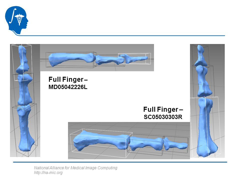 National Alliance for Medical Image Computing http://na-mic.org Full Finger – MD05042226L Full Finger – SC05030303R