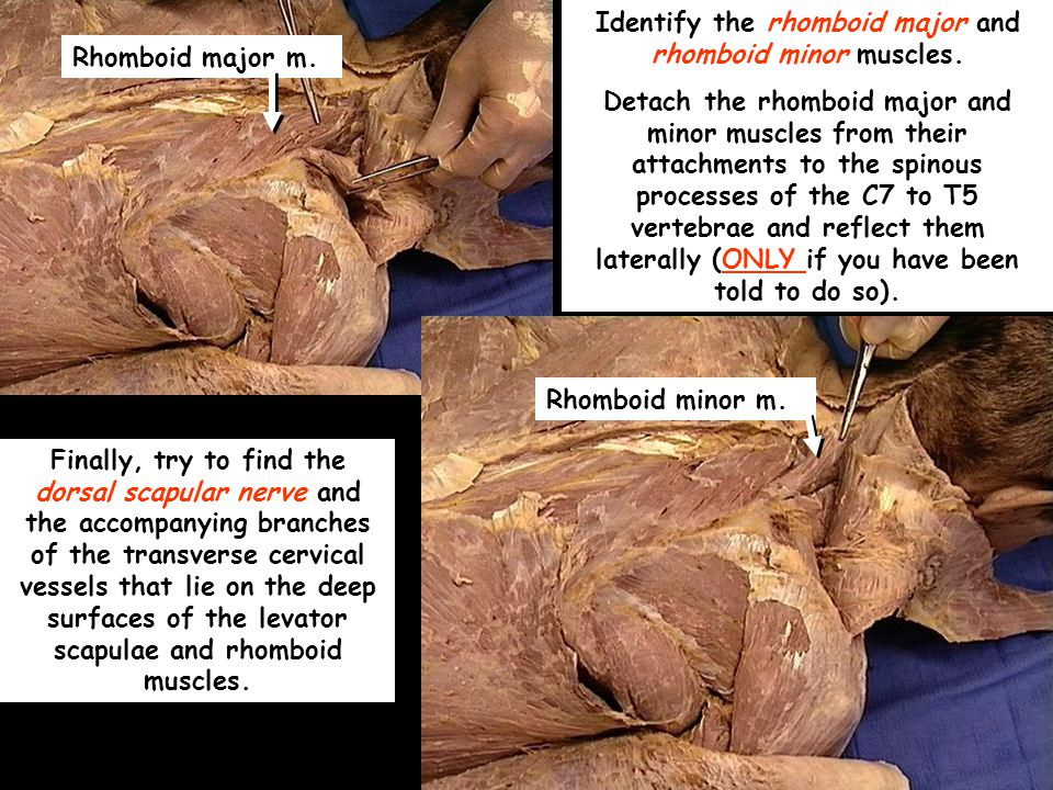 Rhomboid major m.Rhomboid minor m. Identify the rhomboid major and rhomboid minor muscles.