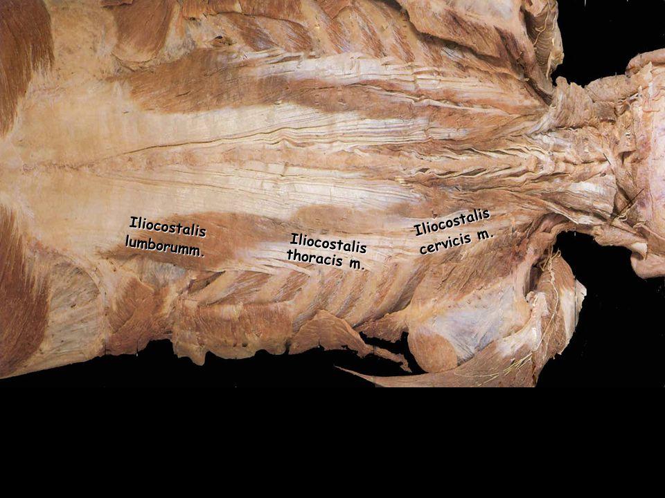 Iliocostalislumborumm. Iliocostalis thoracis m. Iliocostalis cervicis m.