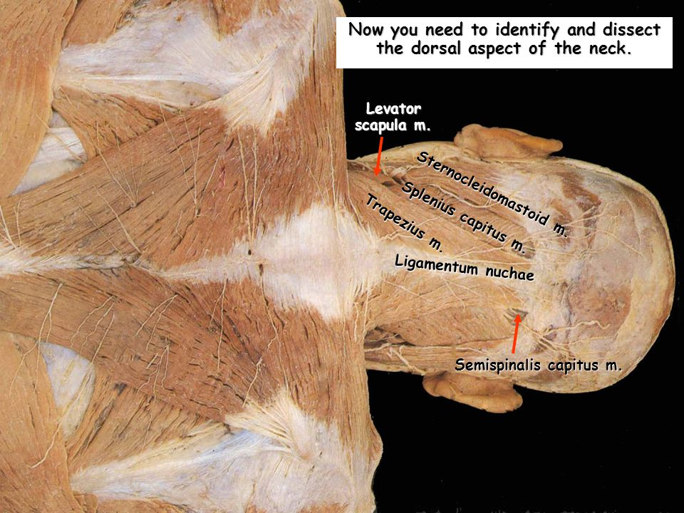 Now you need to identify and dissect the dorsal aspect of the neck.