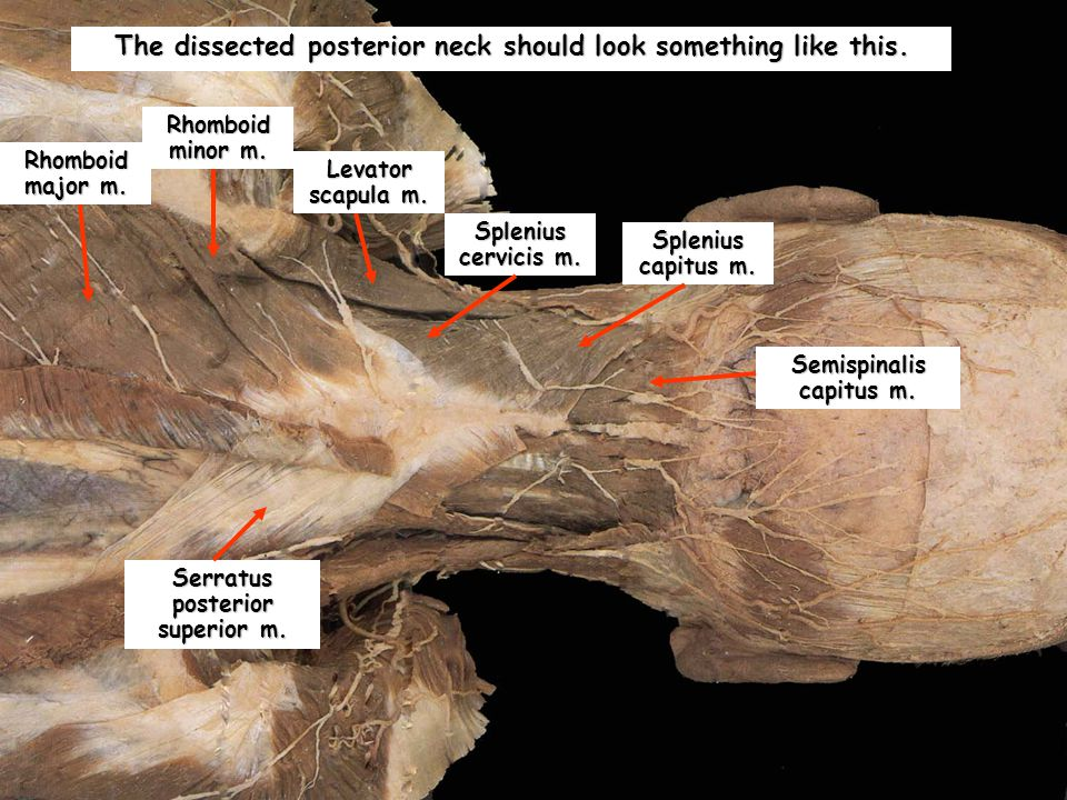 The dissected posterior neck should look something like this.