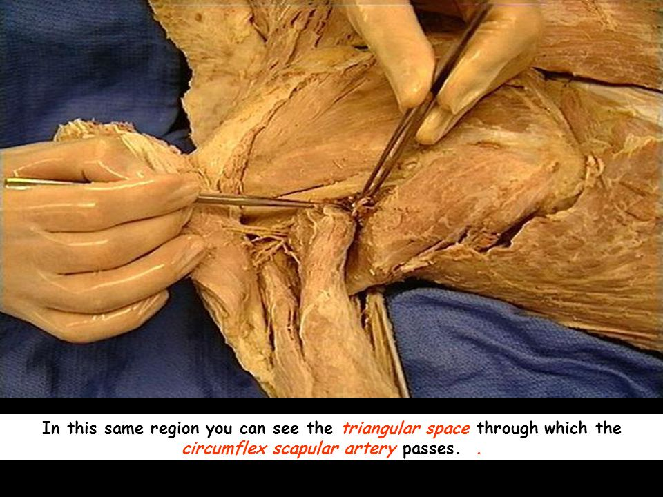 In this same region you can see the triangular space through which the circumflex scapular artery passes..