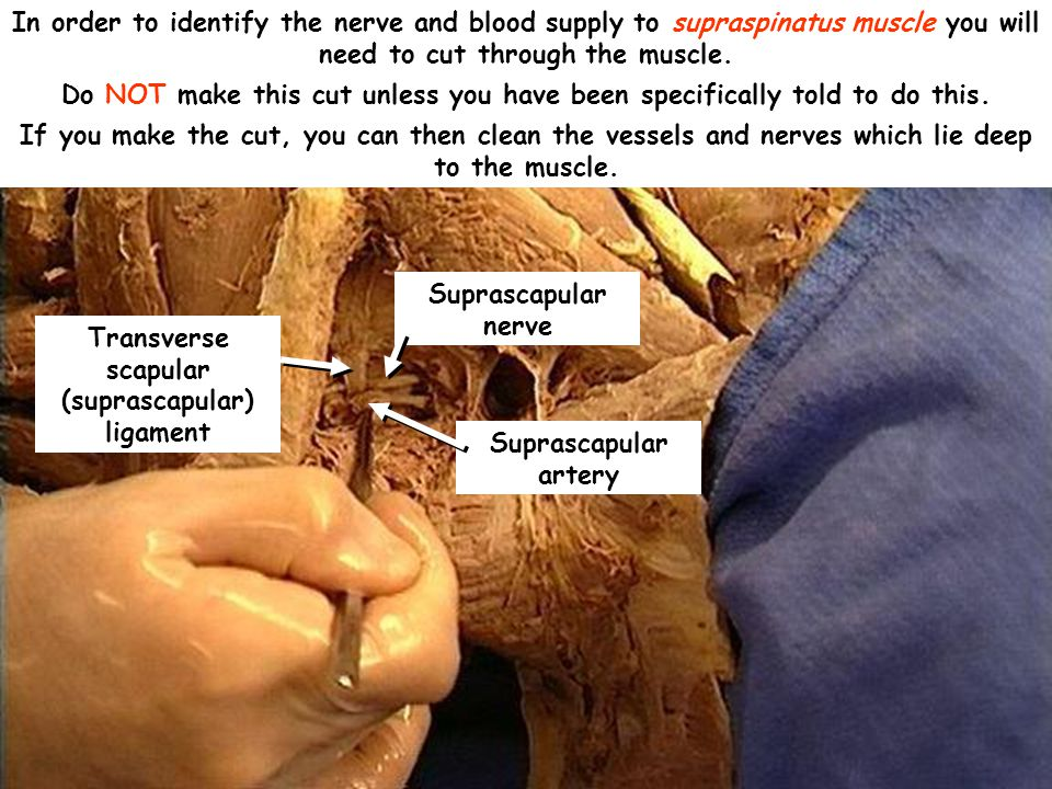 Suprascapular artery In order to identify the nerve and blood supply to supraspinatus muscle you will need to cut through the muscle.