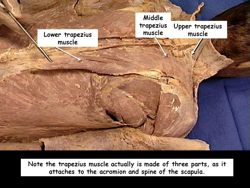 Note the trapezius muscle actually is made of three parts, as it attaches to the acromion and spine of the scapula.