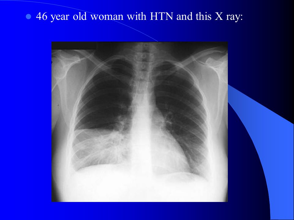 46 year old woman with HTN and this X ray: