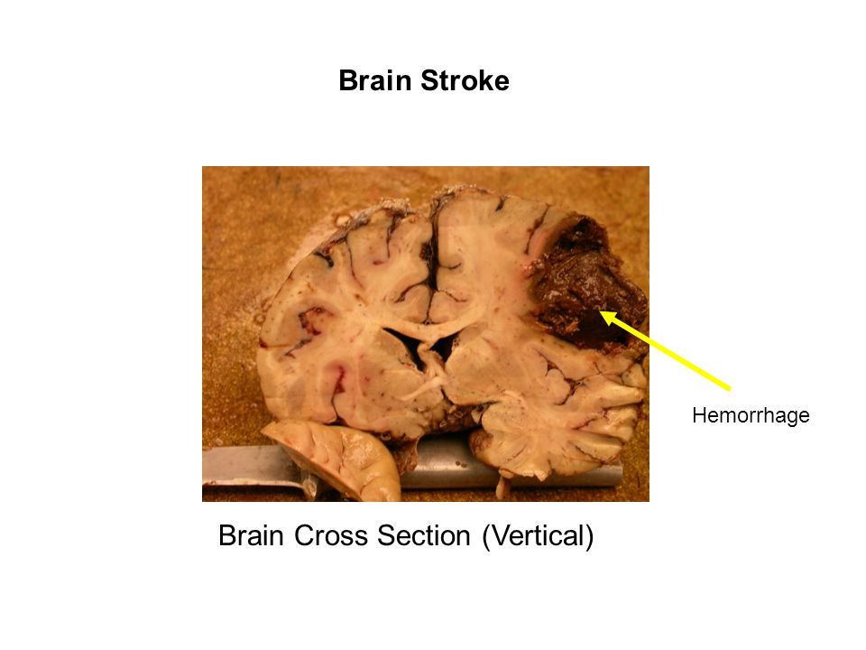 Brain Stroke Hemorrhage Brain Cross Section (Vertical)