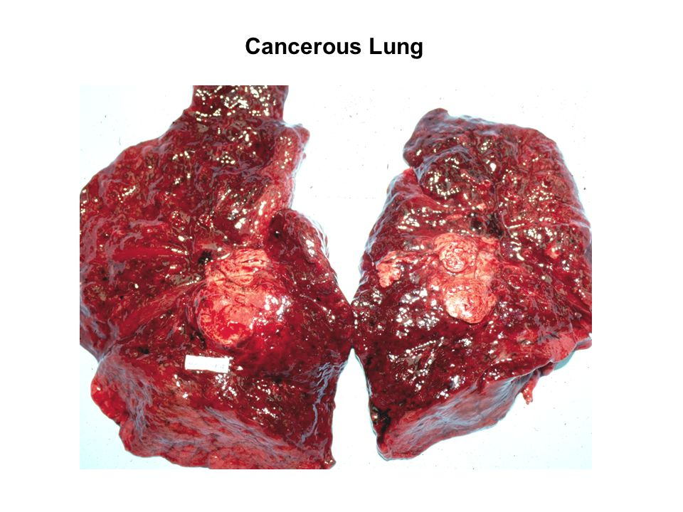 Cancerous Lung