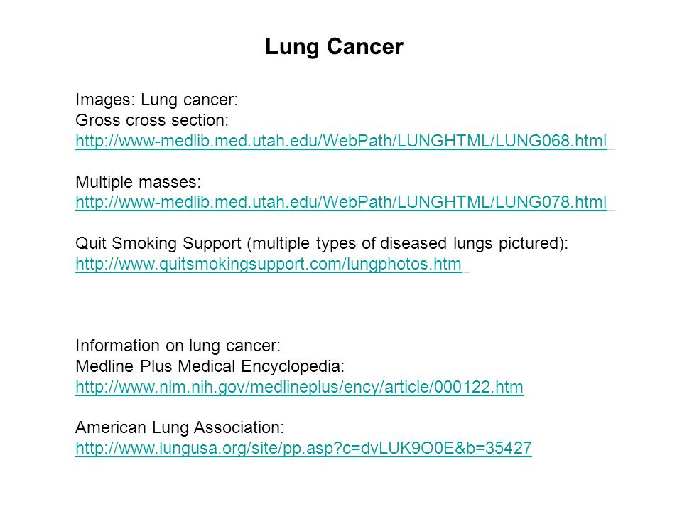 Lung Cancer Images: Lung cancer: Gross cross section: http://www-medlib.med.utah.edu/WebPath/LUNGHTML/LUNG068.html Multiple masses: http://www-medlib.med.utah.edu/WebPath/LUNGHTML/LUNG078.html Quit Smoking Support (multiple types of diseased lungs pictured): http://www.quitsmokingsupport.com/lungphotos.htm Information on lung cancer: Medline Plus Medical Encyclopedia: http://www.nlm.nih.gov/medlineplus/ency/article/000122.htm American Lung Association: http://www.lungusa.org/site/pp.asp c=dvLUK9O0E&b=35427