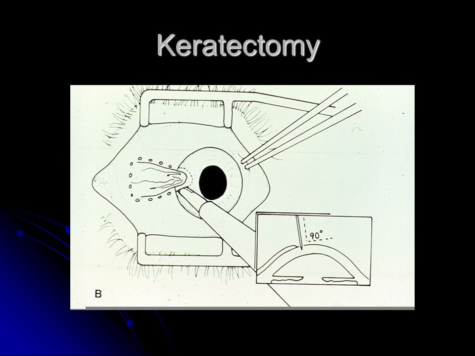 Keratectomy