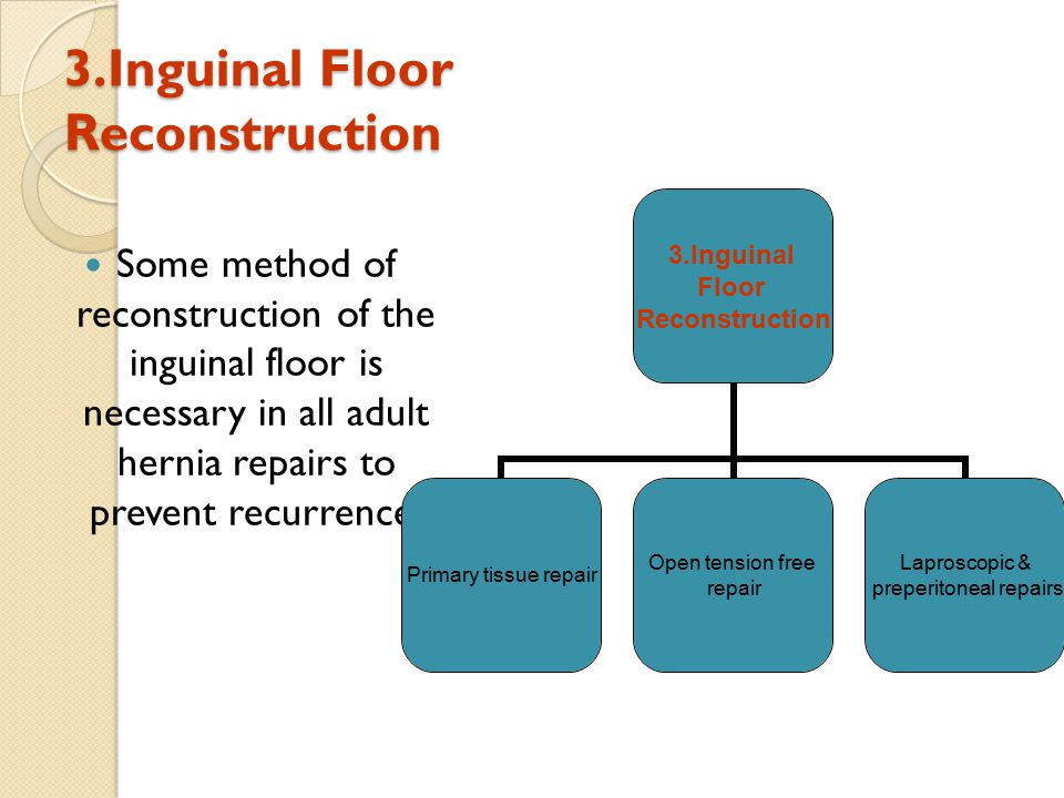 3.Inguinal Floor Reconstruction Some method of reconstruction of the inguinal floor is necessary in all adult hernia repairs to prevent recurrence.