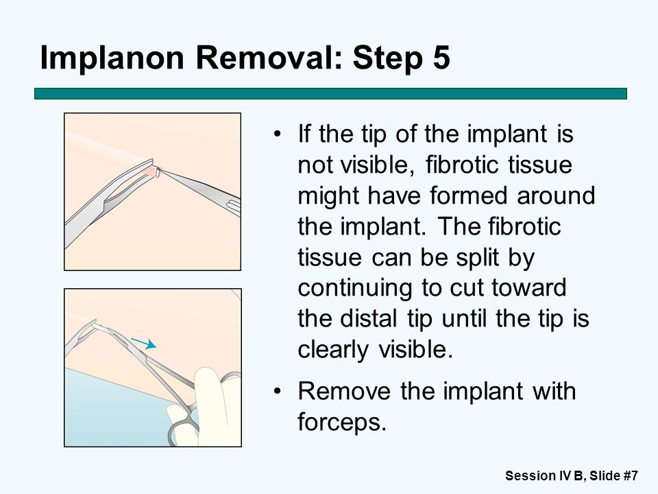 Session IV B, Slide #7 Implanon Removal: Step 5 If the tip of the implant is not visible, fibrotic tissue might have formed around the implant.