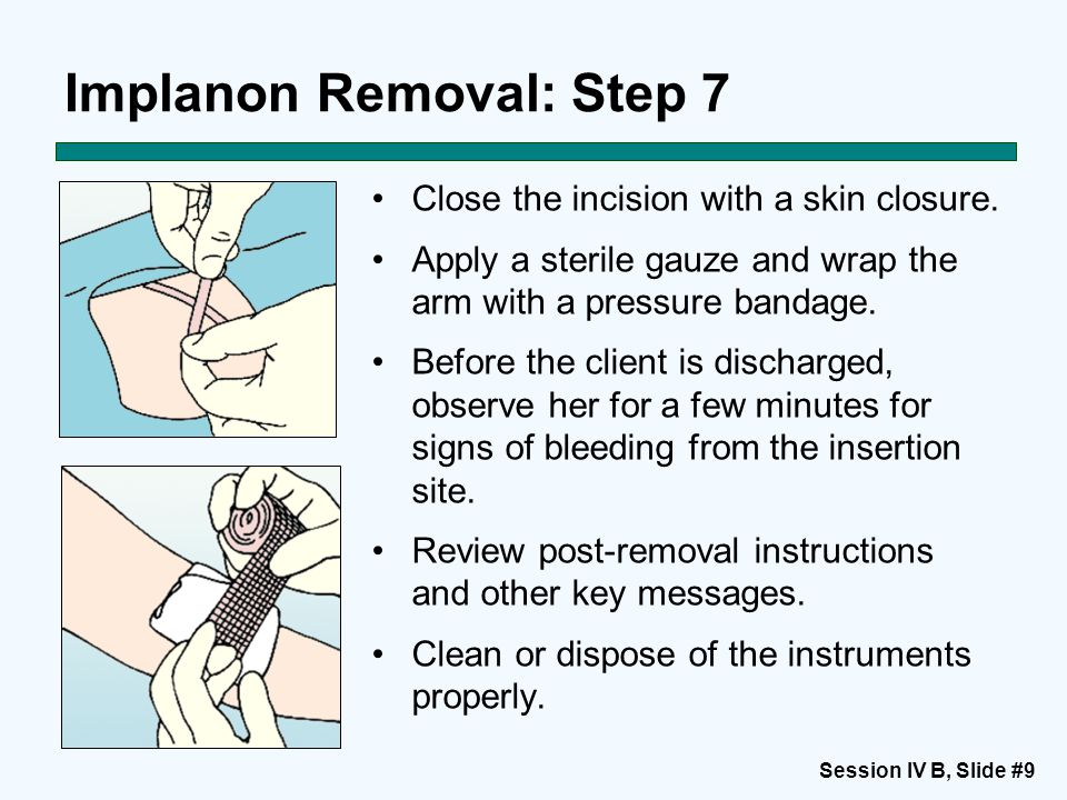 Session IV B, Slide #10 Post-removal Options If the woman decided to keep using this method and is still eligible, insert a new implant through the same incision, or if the client prefers, use the other arm.
