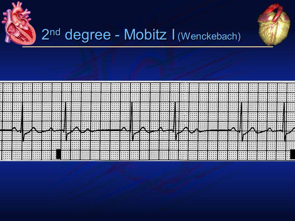 2 nd degree - Mobitz I (Wenckebach)