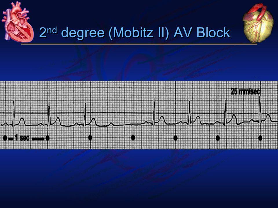 2 nd degree (Mobitz II) AV Block