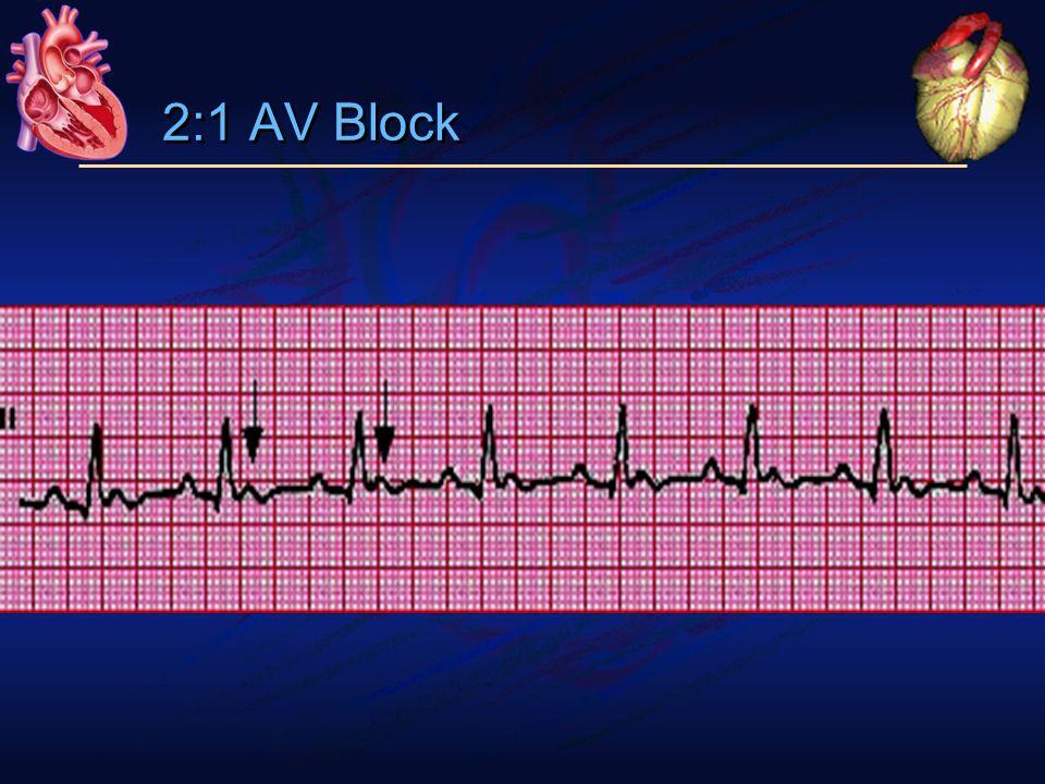 2:1 AV Block