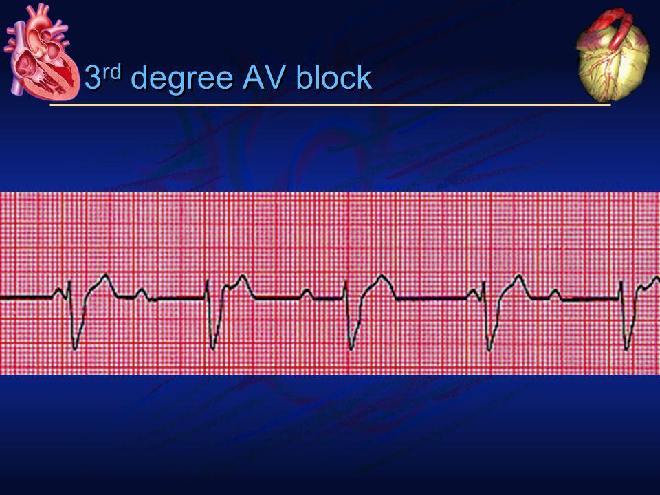 3 rd degree AV block