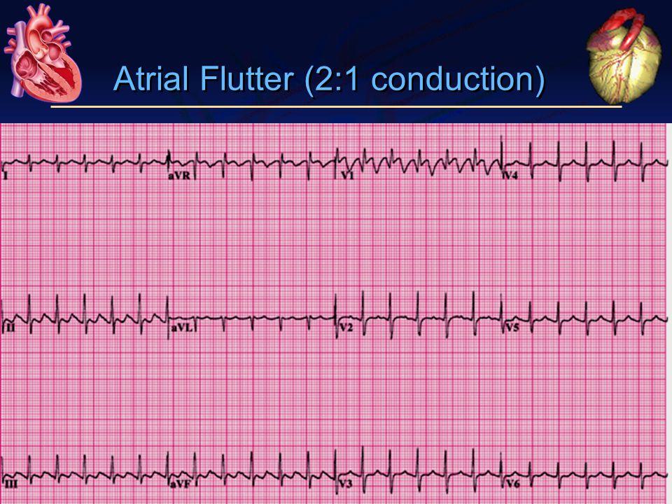 Atrial Flutter (2:1 conduction)