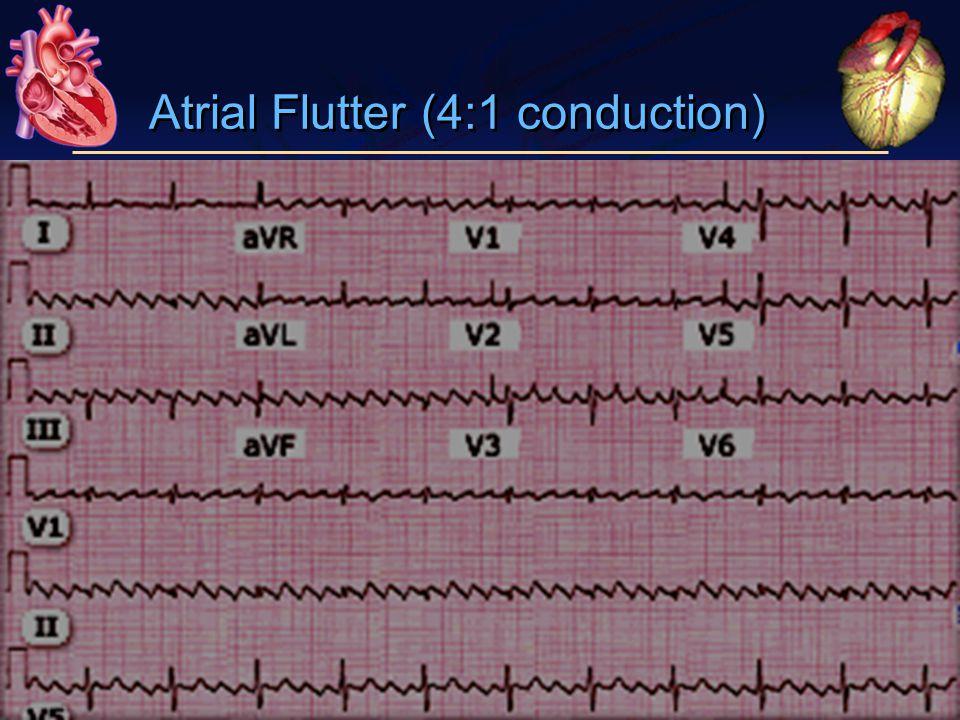 Atrial Flutter (4:1 conduction)