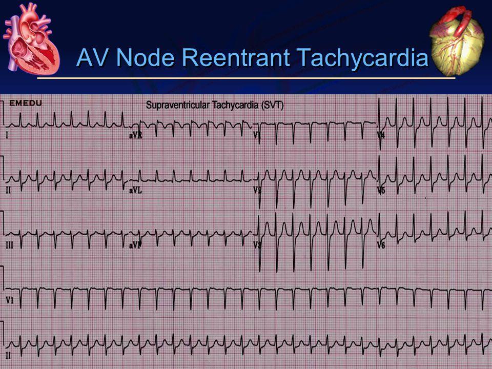 AV Node Reentrant Tachycardia